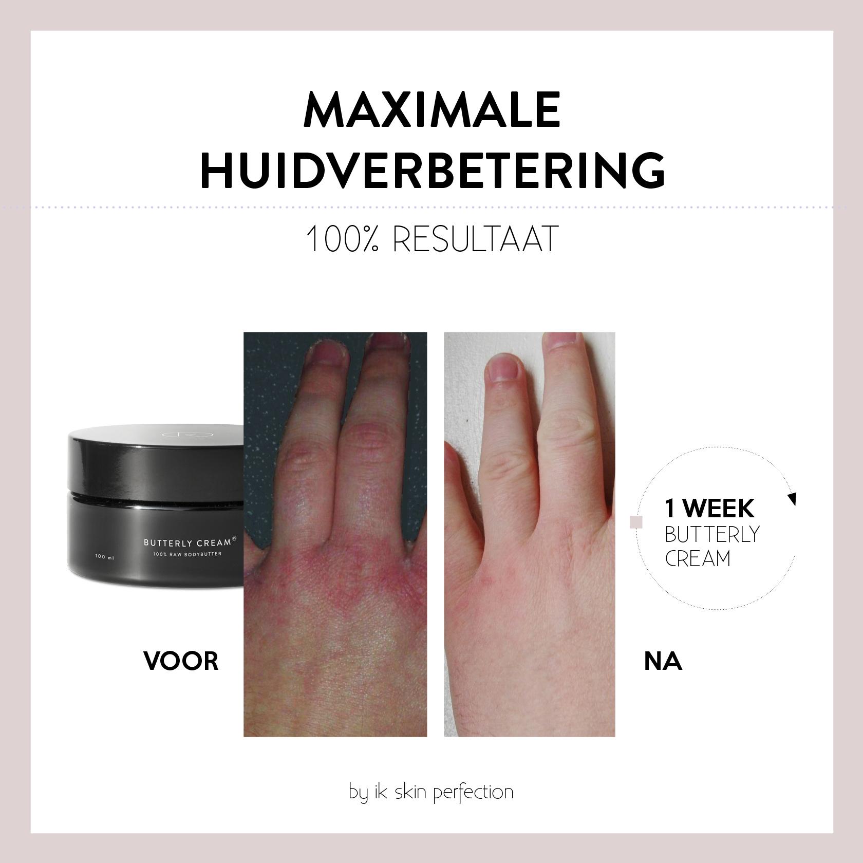 huidverbetering before en after foto