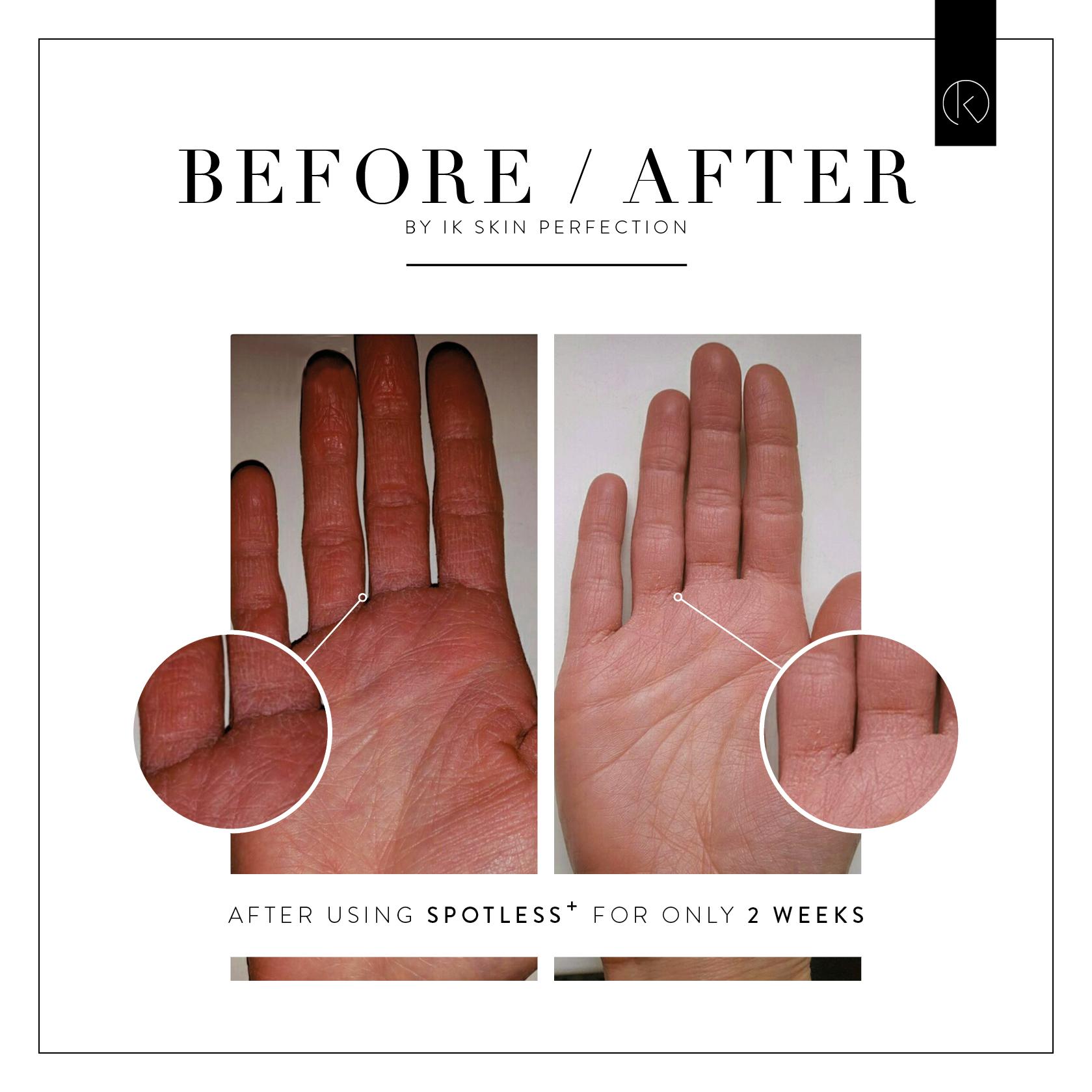 before en after foto voor huidverbetering in Goirle