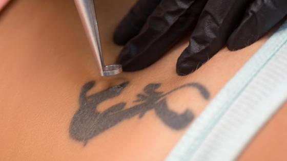 tattoo laseren met pico laser